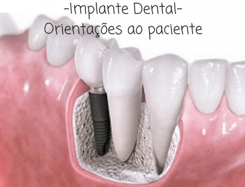 Implante Dentário – Orientação aos pacientes